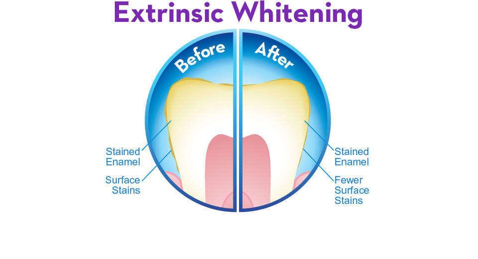 Details about crest 3d white whitestrips advanced vivid