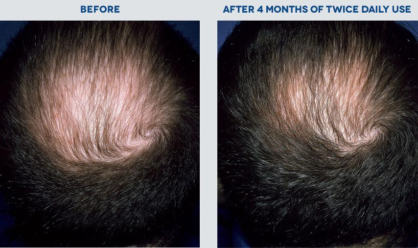 What is Minoxidil? Rogaine