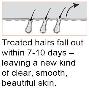 Treated hairs fall out within 7-10 days – leaving a new kind of clear, smooth, beautiful skin.