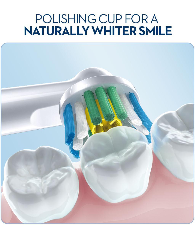 prowhite teeth whitening
