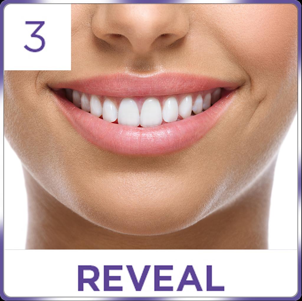 Amazon Com Ontel Miracle Teeth Whitener: Amazon.com : Crest 3D White Whitestrips Professional