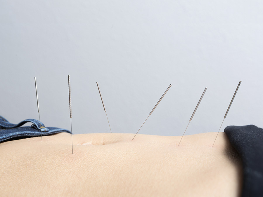45-Minute Community Acupuncture Treatment with Cupping and More
