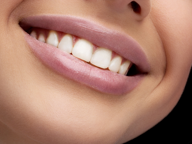 One Custom Teeth-Whitening Treatment