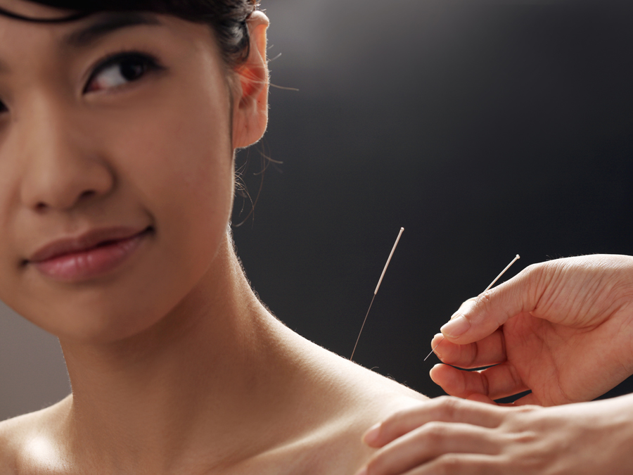 45-Minute Private Acupuncture Treatment