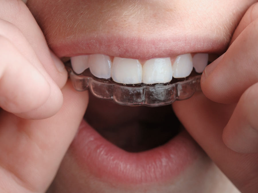 Full Invisalign Treatment