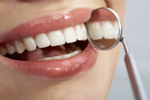 Dental Exam, Cleaning and X-Rays with In-Office Teeth Whitening and More