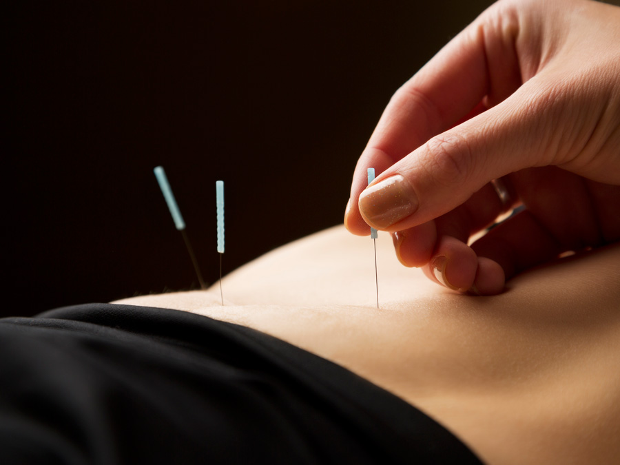 45-Minute Community Acupuncture Treatment with Consultation Included