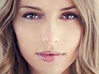 Microdermabrasion,  Chemical Peel, or Deep Exfoliation Package