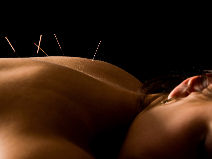 60-Minute Private Acupuncture Treatment with Cupping and More