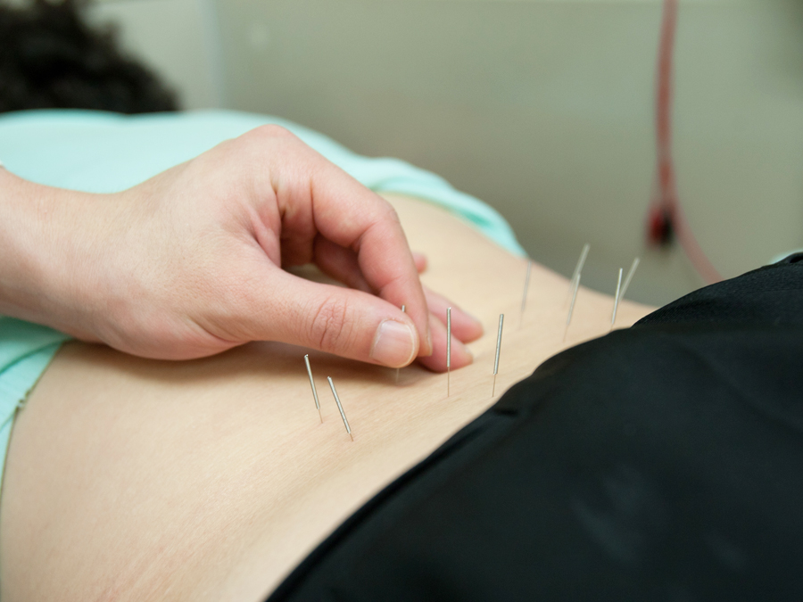 Three 60-Minute Private Acupuncture Treatments with 30-minute Massage and More