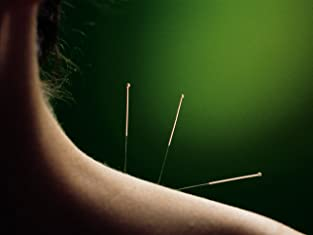 Two Acupuncture Sessions