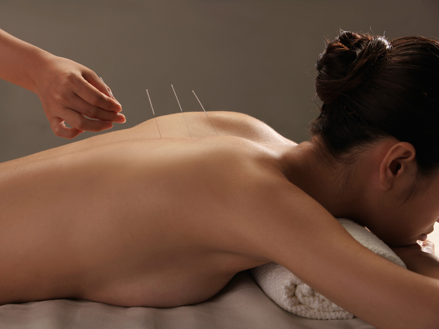 Acupuncture or Reiki Sessions