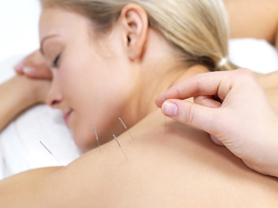 One or Three Acupuncture Treatments