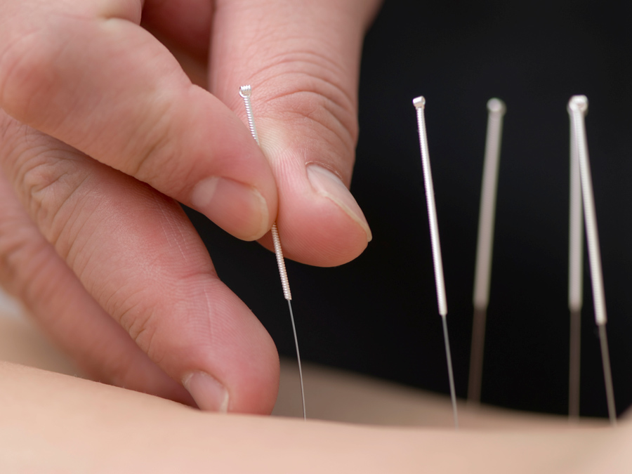 45-Minute Private Acupuncture Treatment with Consultation Included