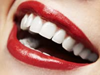 Exam, X-Rays, and Cleaning or Teeth Whitening