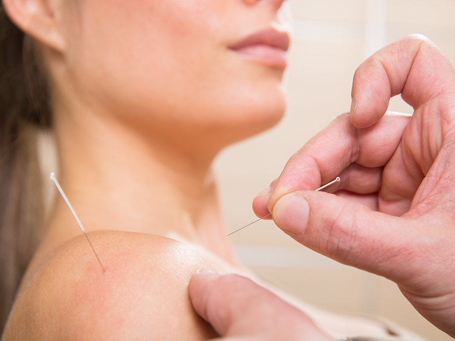 90-Minute Private Acupuncture Treatment