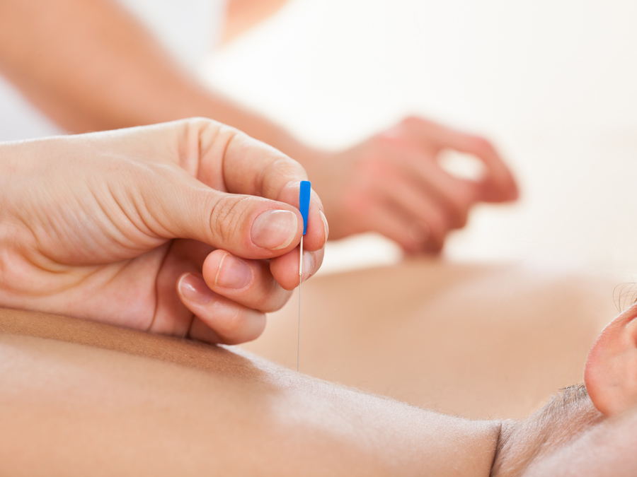 Three 45-Minute Private Acupuncture Treatments with Cupping and More