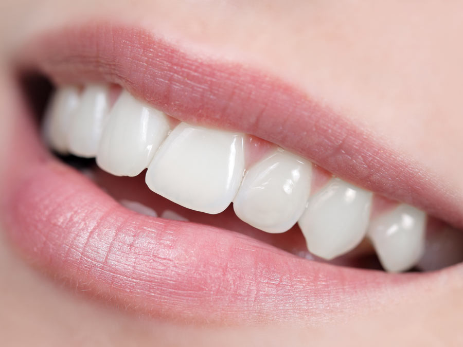 Dental Care and Teeth-Whitening Kit