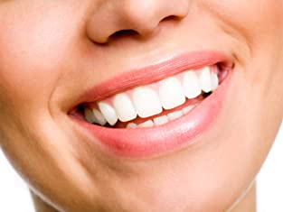 Full Dental-Exam Package with Teeth Whitening