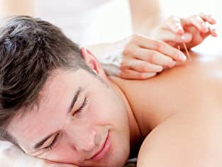 30-Minute Acupuncture and Cupping Treatment with Consultation Included