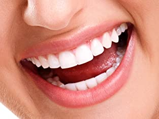 Laser Teeth-Whitening Session