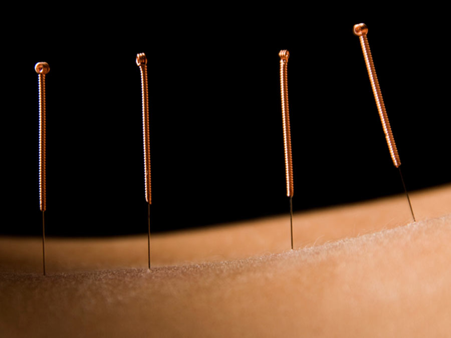 Acupuncture Treatments with Initial Consultation