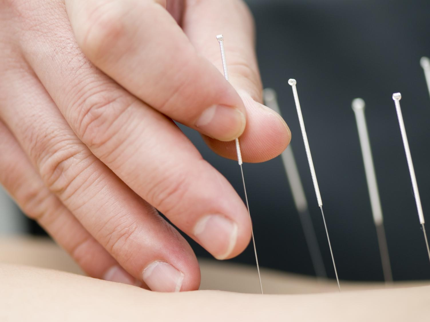 90-Minute Private Acupuncture Treatment with Cupping Included