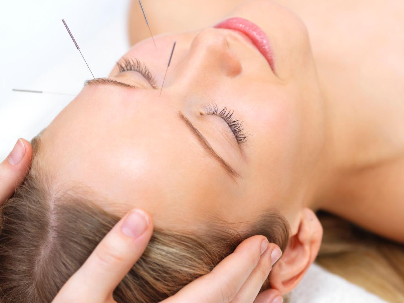 60-Minute Private Acupuncture Treatment with Consultation Included