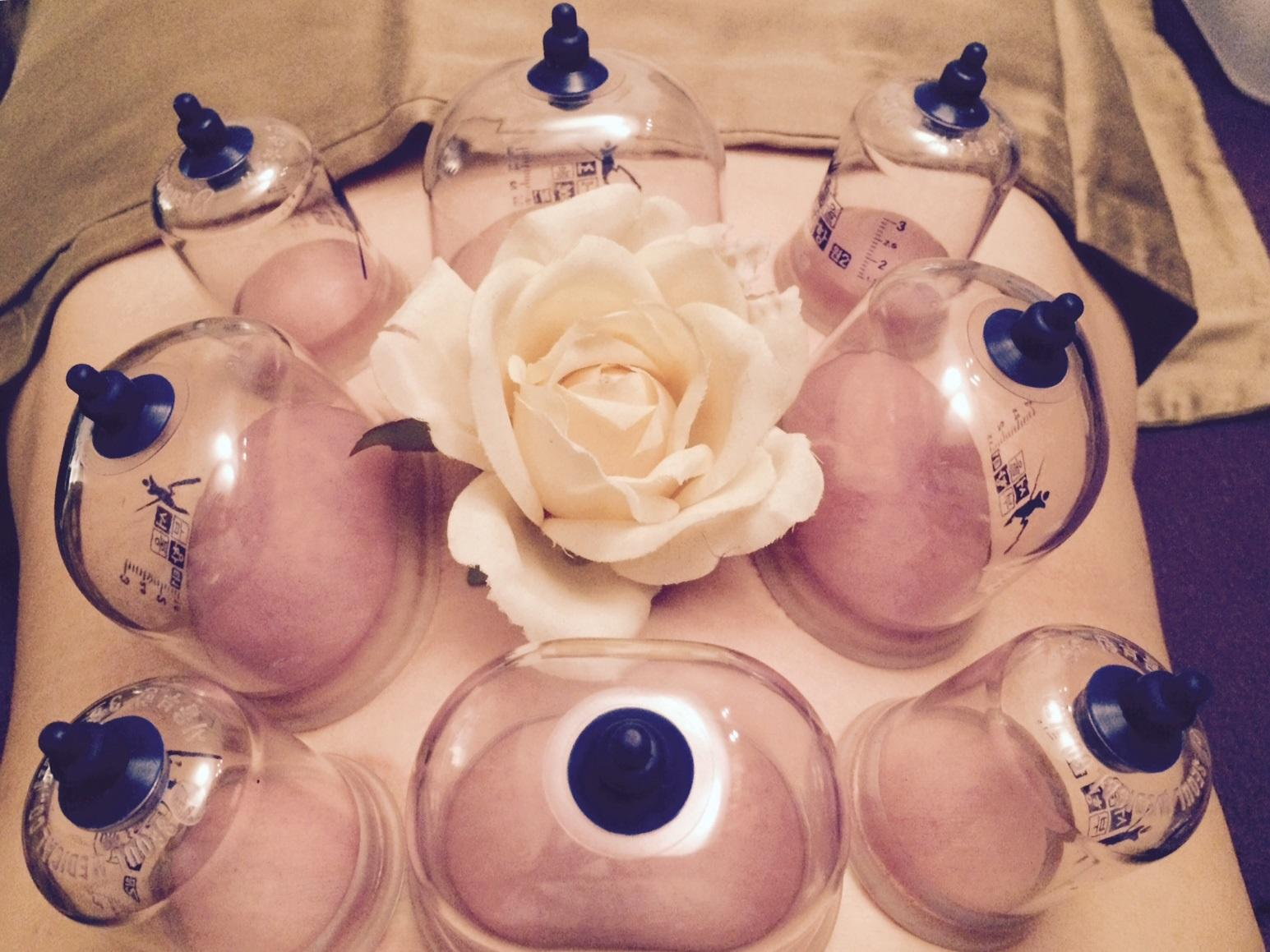 45-Minute Private Acupuncture Treatment with Cupping and More
