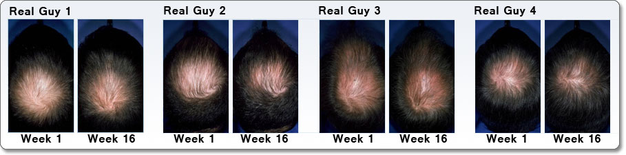 ROGAINE [E2]for Men Hair Regrowth Treatment, Extra Strength Original Unscented (Three-month Supply of Three 2-fluid-ounce Cans) Lifestyle Image