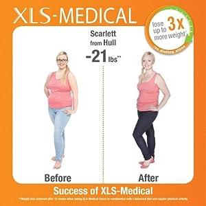 XLS, carb blocker, carb, fat burn, weight loss, diet, diet pills, slimming, slimming tablets,