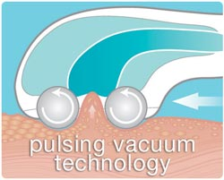 Pulsing technology diagram