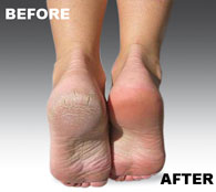 The Micro-Pedi removes rough, hard and dry skin from your feet