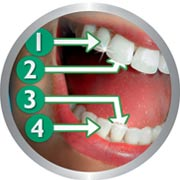 Encourages thorough brushing of each quadrant of the mouth.