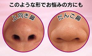 鼻は顔の印象を変える大事なポイント!