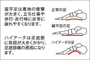 扁平足やハイアーチなどの足底部のトラブルに。